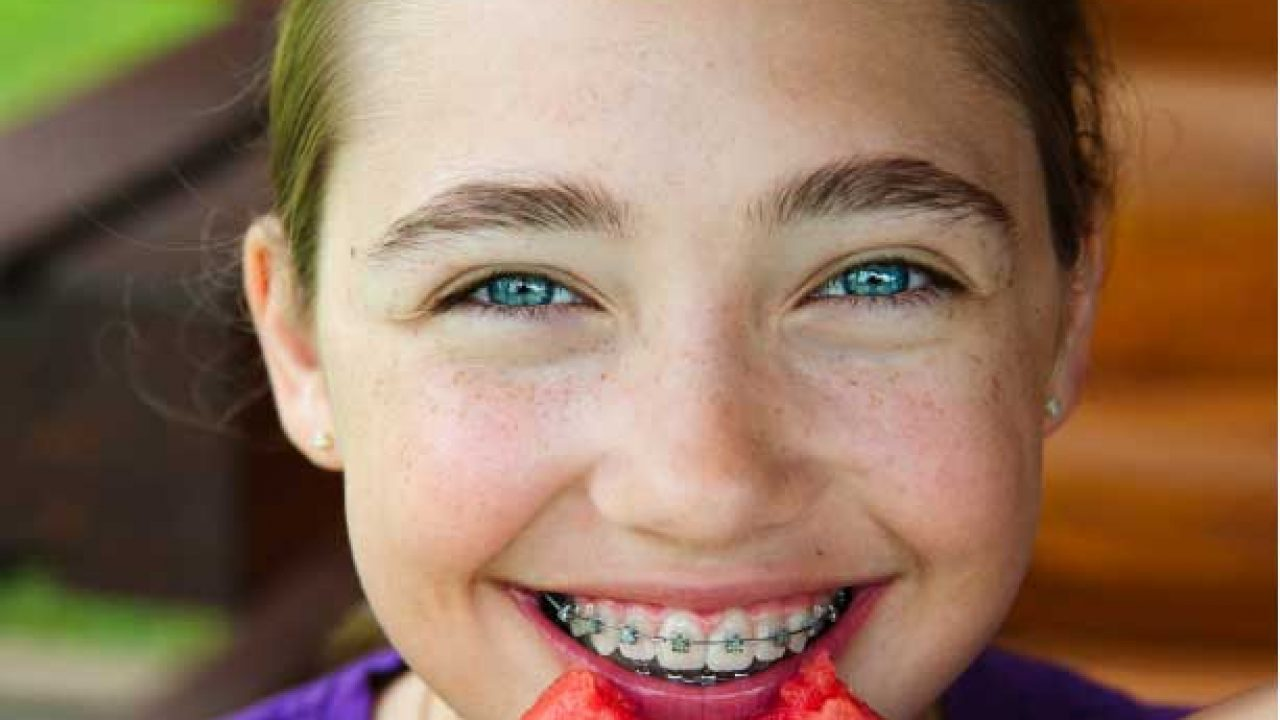 Suitable food for orthodontics