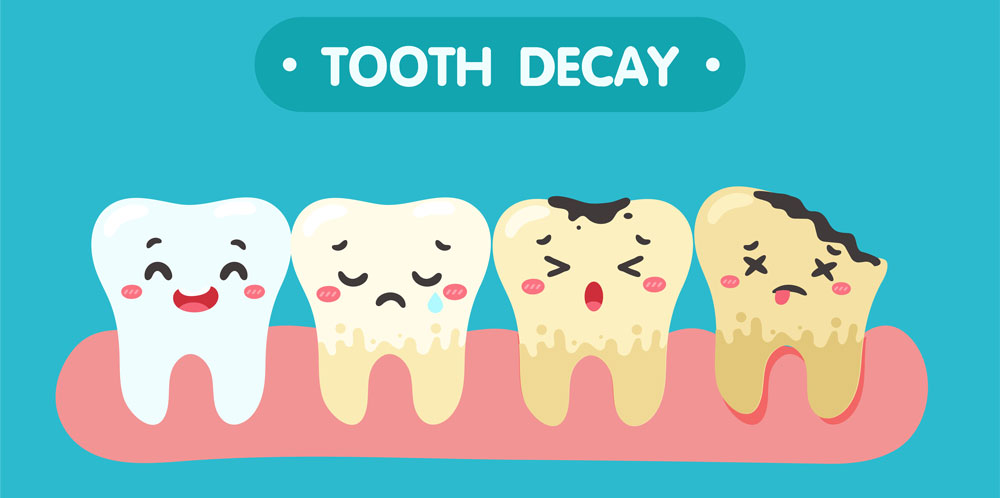 Top Causes Of Tooth Decay