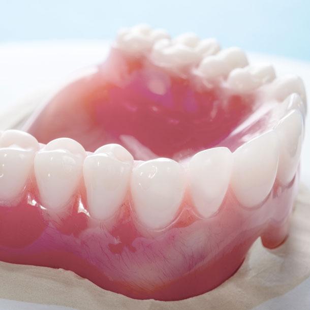 Crowns - Bridges - Dentures