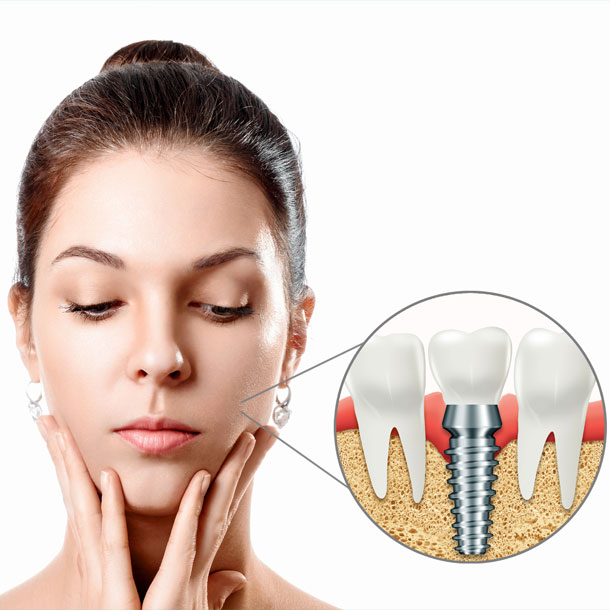 Dental Implants Etobicoke