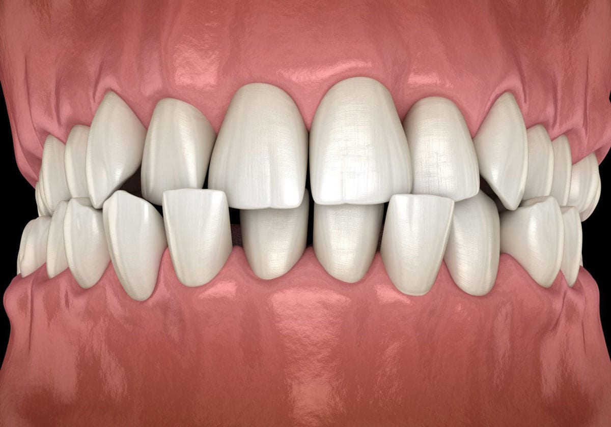 What Is A Crossbite?
