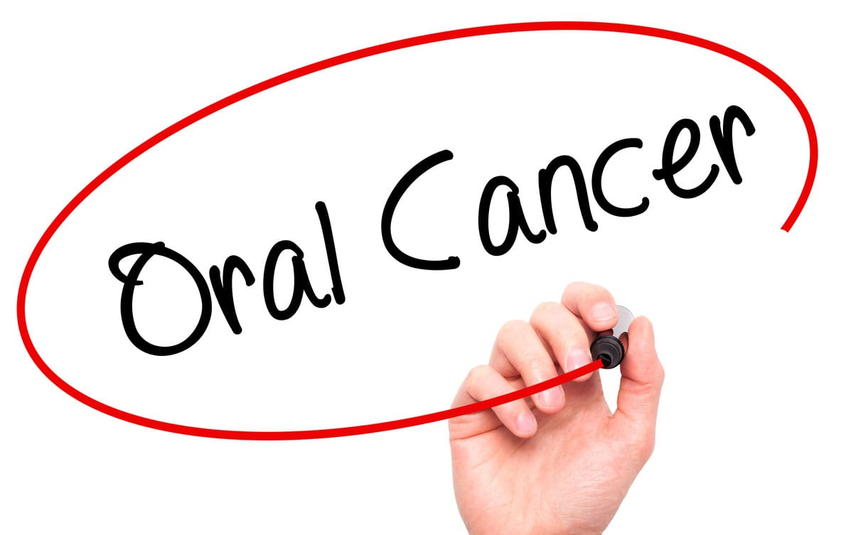 Oral Cancer Treatment and Reconstruction
