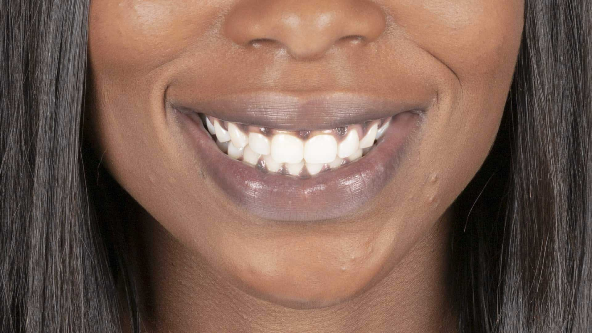 Why Do Some People Have Darker Gums?